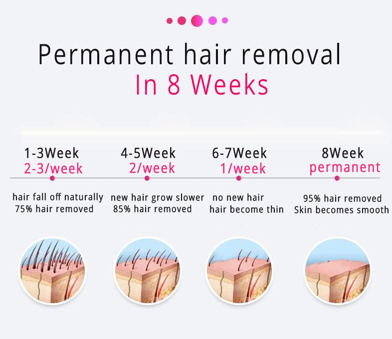Permanent IPL Hair Removal , D3 painless Intense Pulsed Light Hair Removal 2