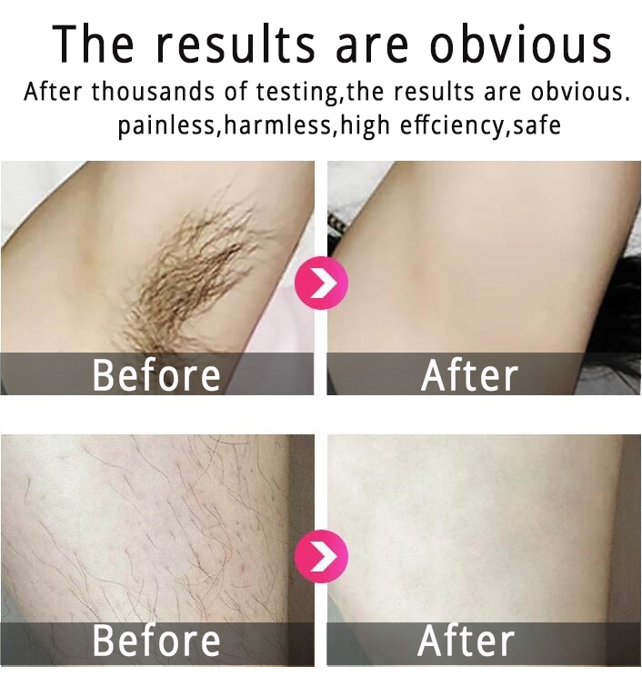 Permanent IPL Hair Removal , D3 painless Intense Pulsed Light Hair Removal 3